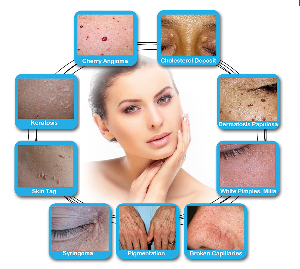 Perfect Touch Skin Tag Removal Bellisimo Med Spa Worcester Ma