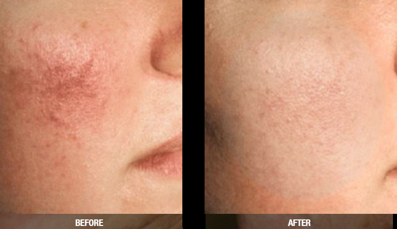 redness removal worcester