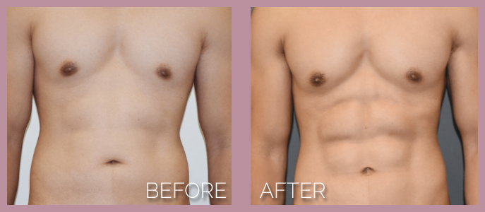 fat loss laser lipo worcester ma