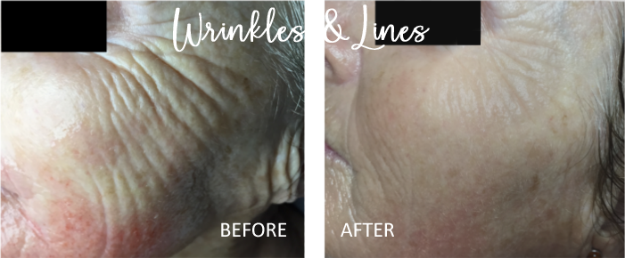 microneedling worcester, ma