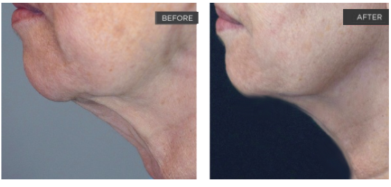 non surgical facelift worcester ma
